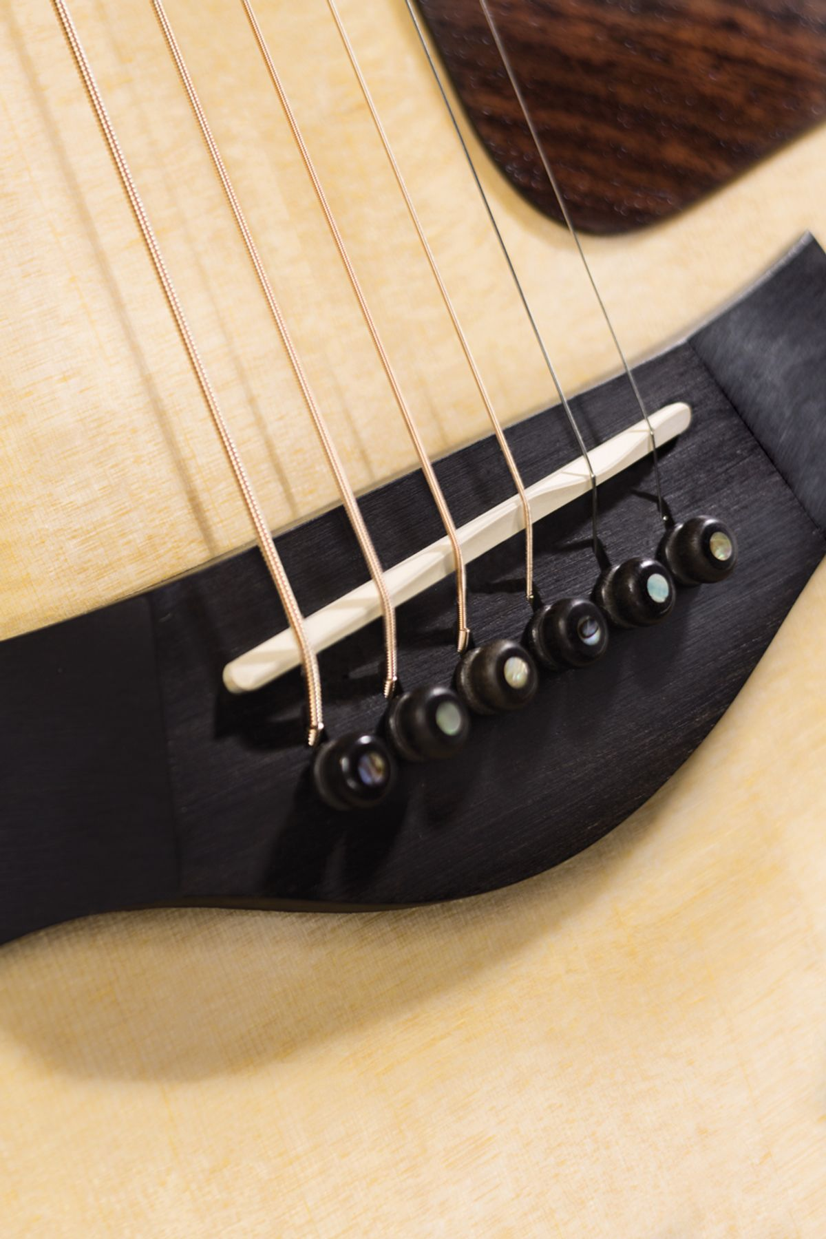 Acoustic Soundboard: High-Tension Wires