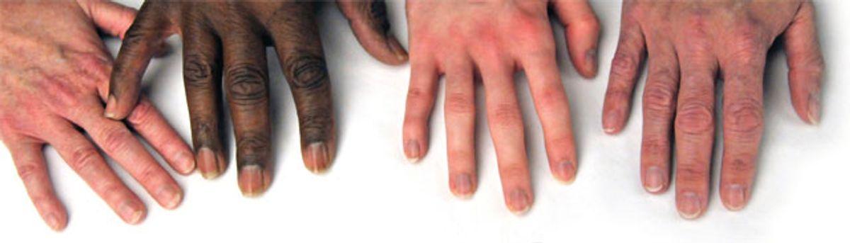 Winterizing Your Fingernails